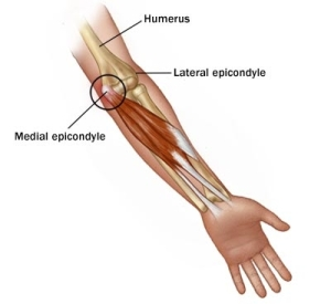 Medial-Epicondyle-and-flexors